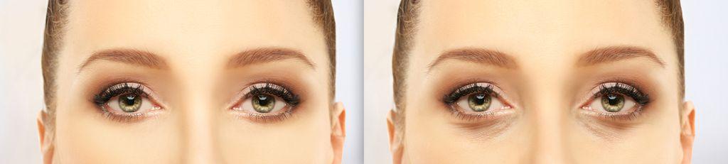 AdobeStock_260810504_EyelidBeforeAfter-1024x231 EstMed kosmetisk plastisk kirurgi Oslo filler rynkebehandling hårfjerning Eyelid surgery,blepharoplasty alternative tekst